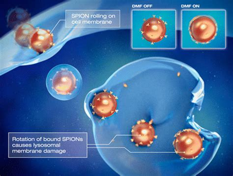 Magnetically controlled nanoparticles cause cancer cells